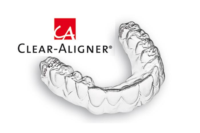 logo clear aligner